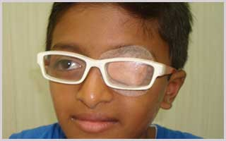 treatment of lazy eyes in navi mumbai