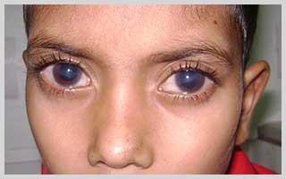 Congenital-glaucoma-in-Navi-Mumbai