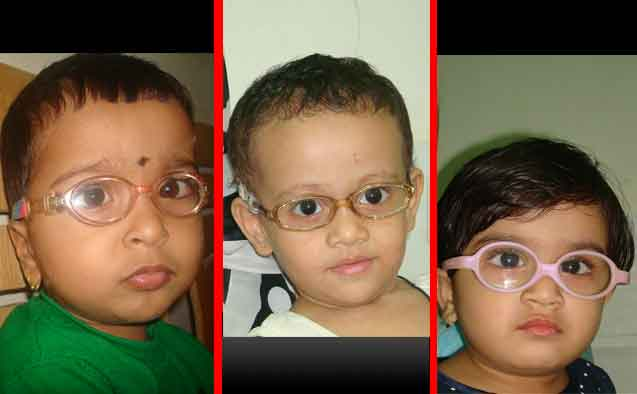 Glasses in Children | Spectacles in Children