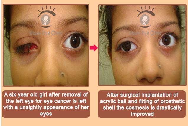 artificial eye fitting in navi mumbai