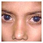 Glaucoma in children Navi Mumbai India