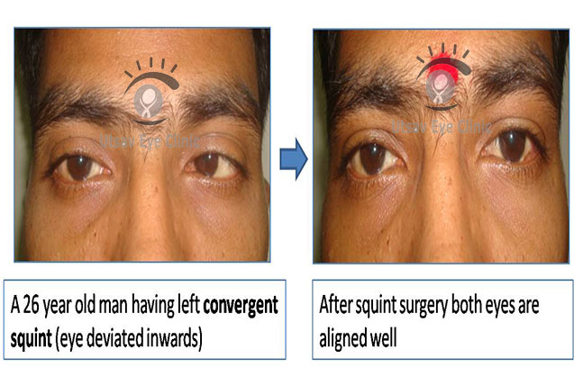 treatment of squint in mumbai India
