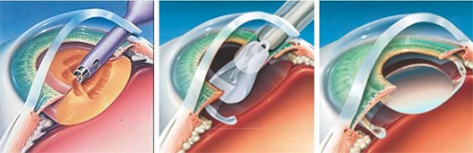 Laser Cataract Surgery in Kharghar Navi Mumbai