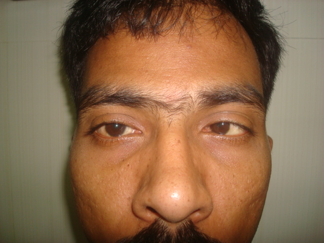 adults Treatment strabismus